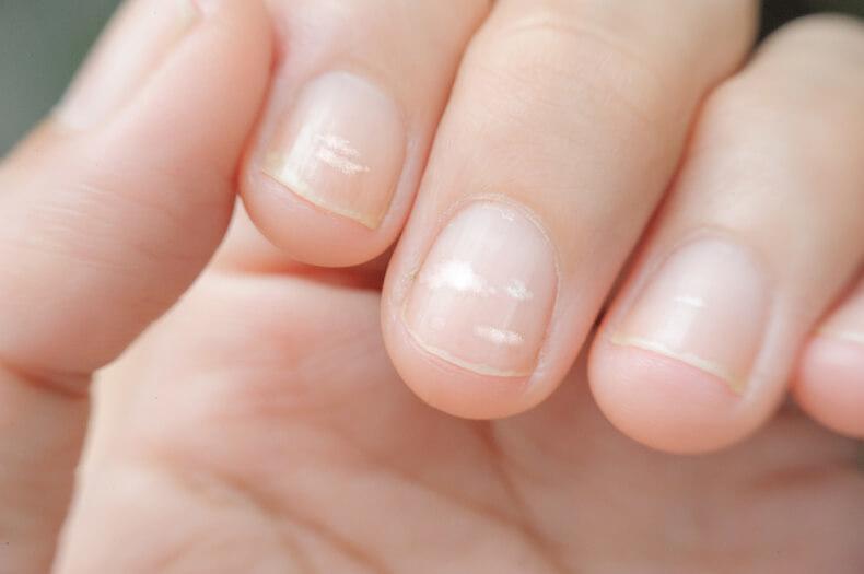 Почему появляются белые пятна на ногтях