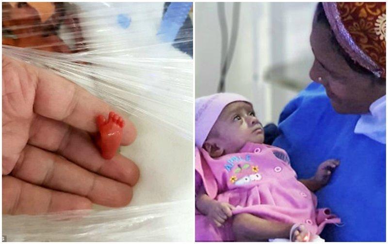 """""""Она боролась, и ей удалось выжить"""": в Индии спасли 400-граммового малыша"""
