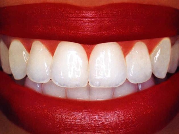 Зубы далеко не всегда растут во рту