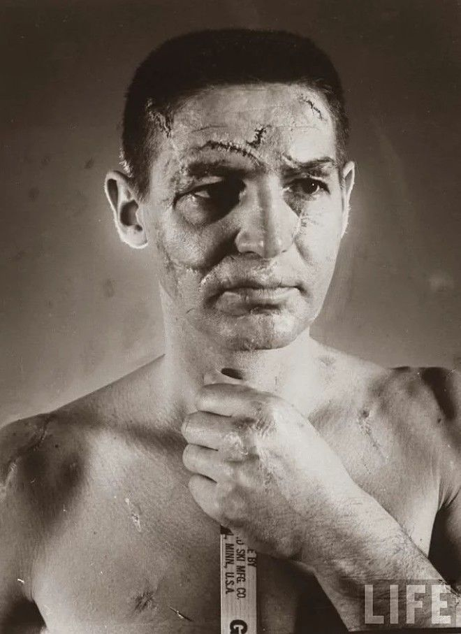 Терри савчук почему он играл без маски