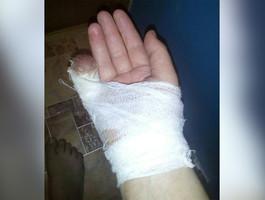 В Смоленской области женщине на улице откусили палец