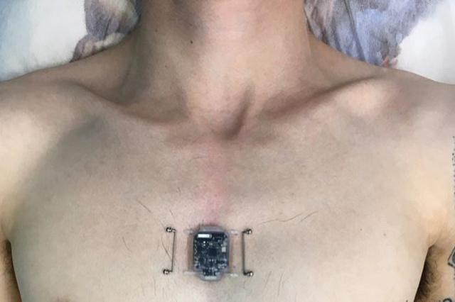 Новосибирский программист установил себе компас-имплант