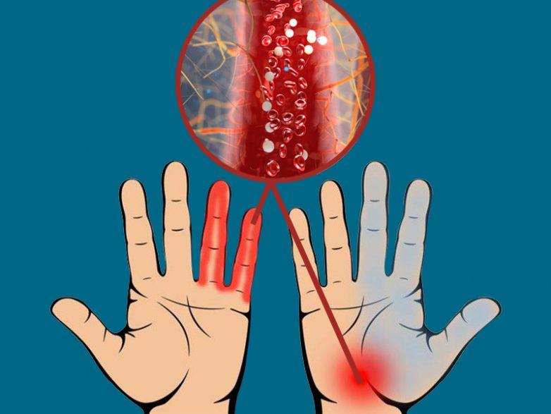 Признаки нарушения кровообращения, к которым стоит прислушаться