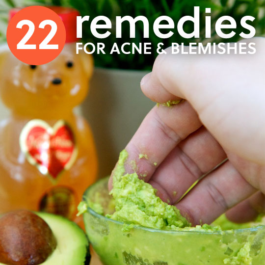 22 Home Remedies for Acne & Pesky Pimples