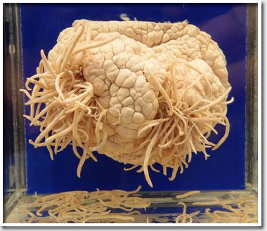 Амеба съела мозг женщине, ко…