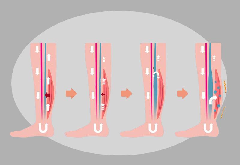Отек ног: Лучшие способы решить проблему