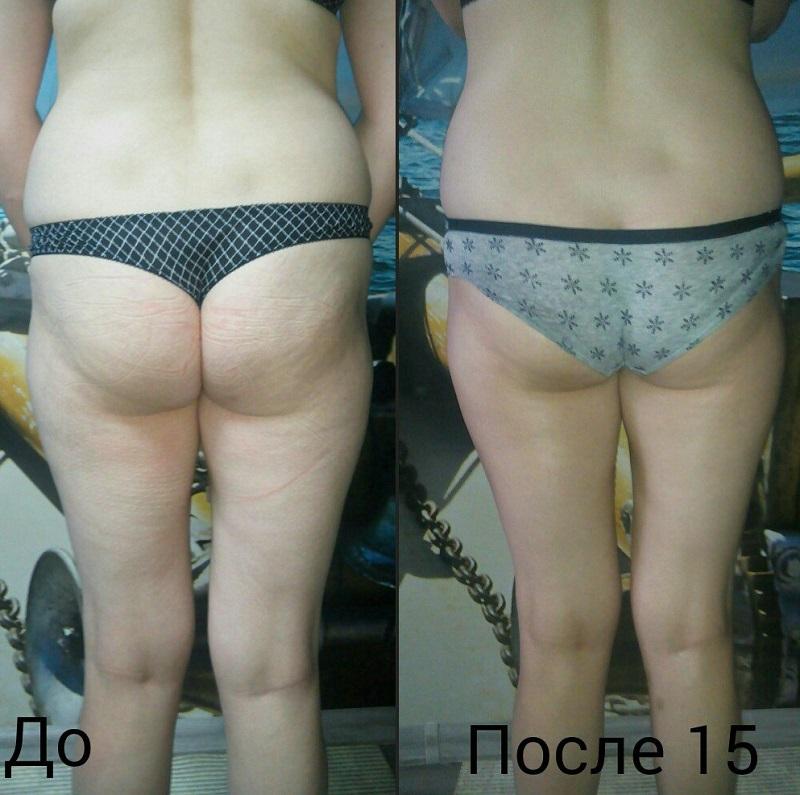Как сбросить вес с помощью массажа