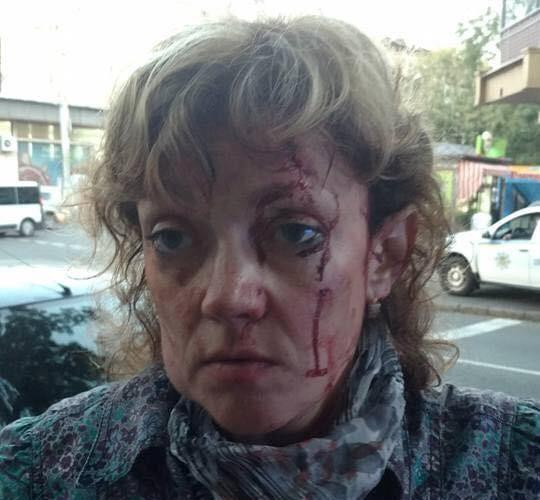 Поделом: Неизвестные надавали тумаков «активистке» евромайдана в Одессе