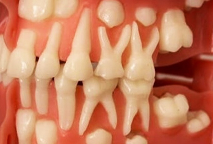 Стало возможным вырастить зубы в любом возрасте