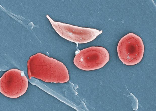 Серповидноклеточную анемию впервые вылечили генной терапией