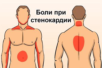 Стенокардия: локализация очагов боли...