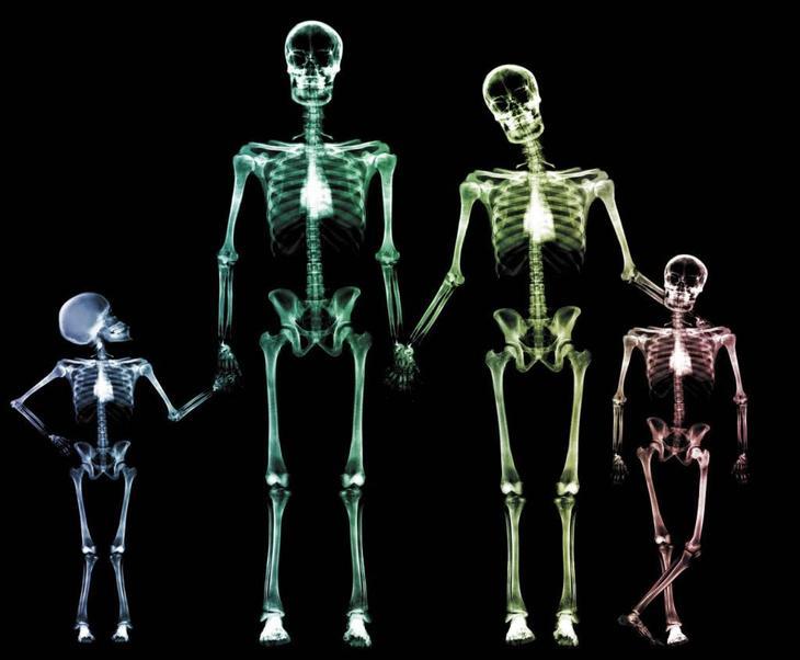 рентген черепа в 2 проекциÑÑ…