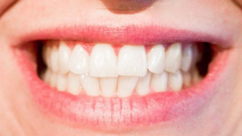 Кислые напитки вредны для зубов