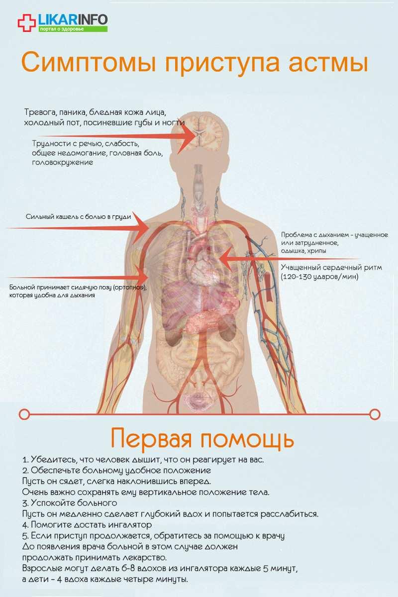 аÑтма - Ñкора помощь - инфографика
