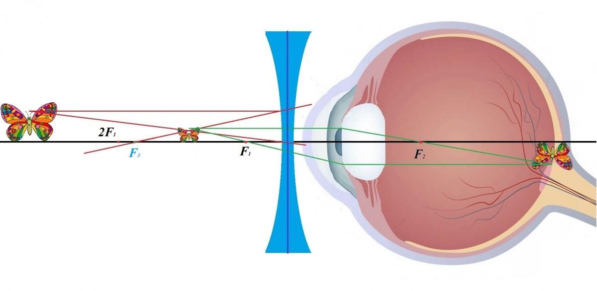 Зрение минус 10 близорукость