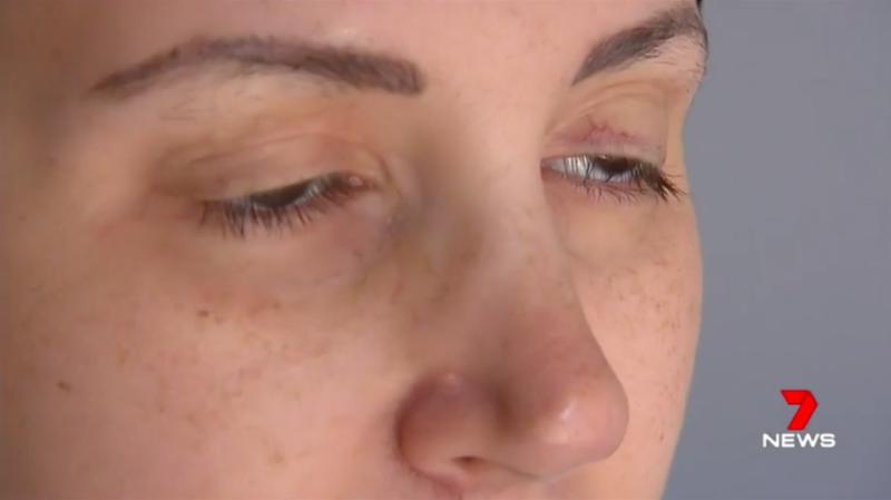 Поднимите мне веки: женщина борется с необъяснимой болезнью закрывающихся глаз