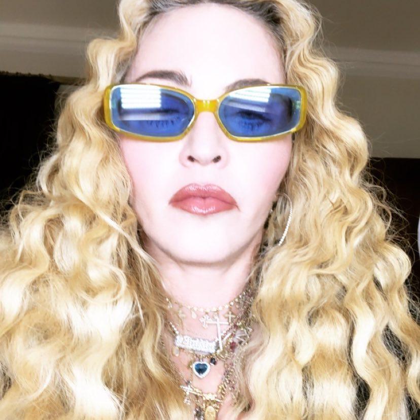 Кукла с восковым лицом: Мадонна испугала поклонников неудачными результатами пластической операции