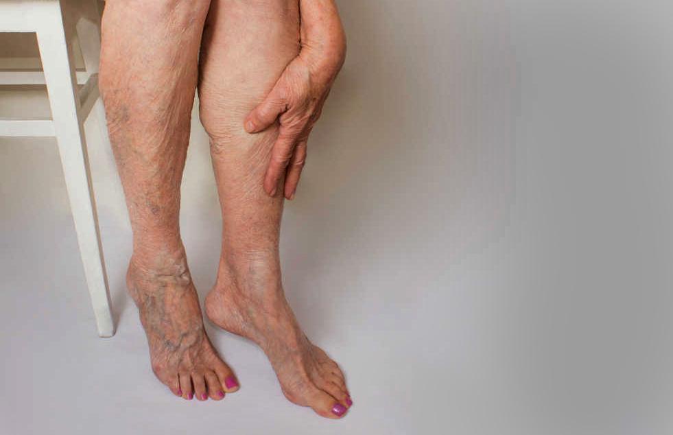 Варикоз: болезнь, которая во время пандемии стала гораздо опаснее, чем раньше