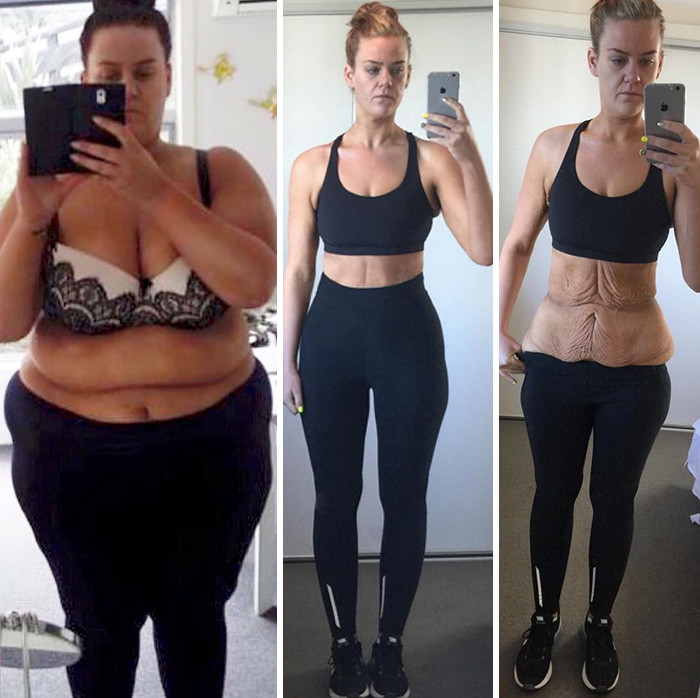 Симптомы Сильного Похудения. 10 болезней, провоцирующих похудение