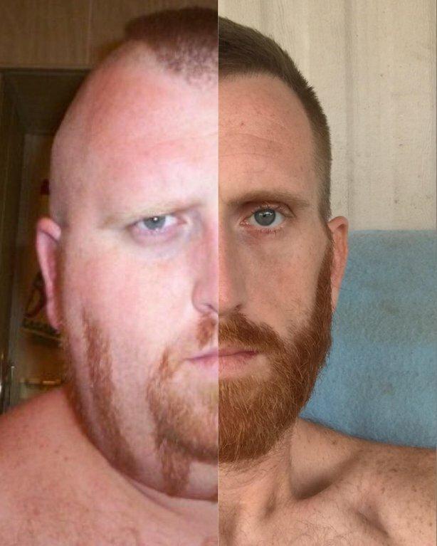 15. «Моё лицо до и после того, как я похудел» было стало, в мире, люди, подборка, сравнение, фото