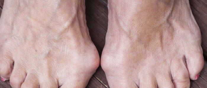 Лечение косточки на пальцах ног народными средствами