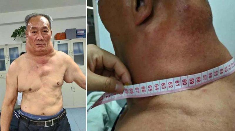 30 лет пьянства превратили мужчину в «Халка»