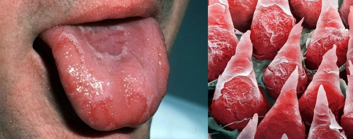 Странный вкус, как симптом. Медицина, Болезнь, Синусит, Биология, Длиннопост, Scientaevulgaris
