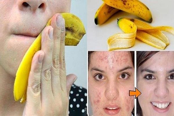 Прекратите выбрасывать банан…