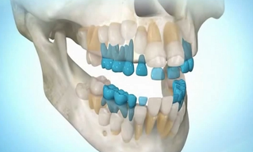 Регенерация новых зубов - реальность