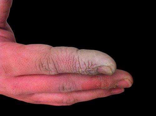 ТОП-25: Самые опасные яды, известные человечеству