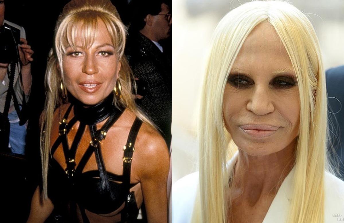 версаче фото дизайнера до и после пластики