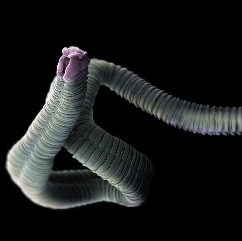 Ленточный червь (Eubothrium crassum) жизнь, интересно, под микроскопом, познавательно, фотограф