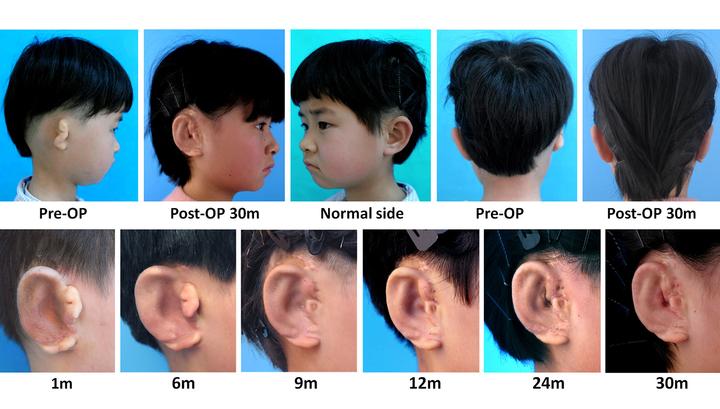 Картинки по запросу уши напечатанные на 3D-принтере