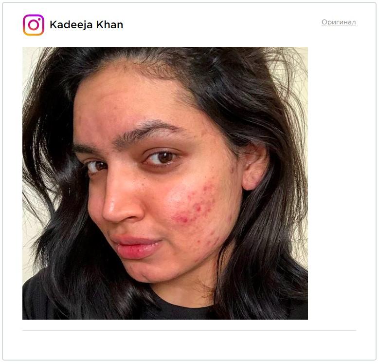 «Красивая даже с акне». Косметическая компания позвала девушку на съемку рекламы, а потом передумала