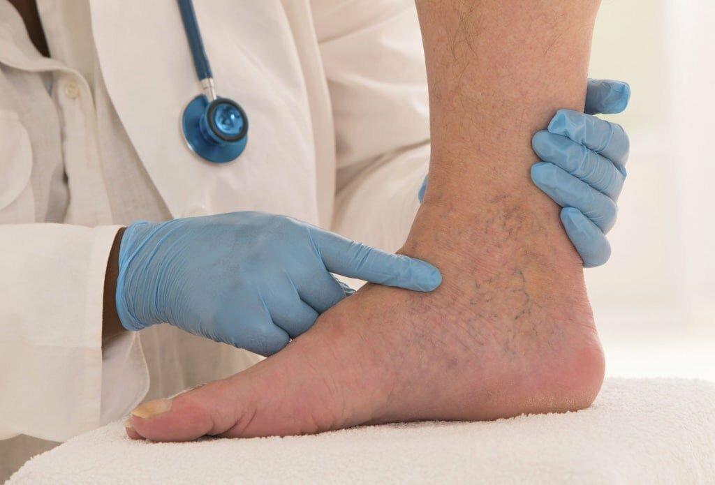 Тромб в ноге: не пропустить первые симптомы болезни,здоровье,медицина