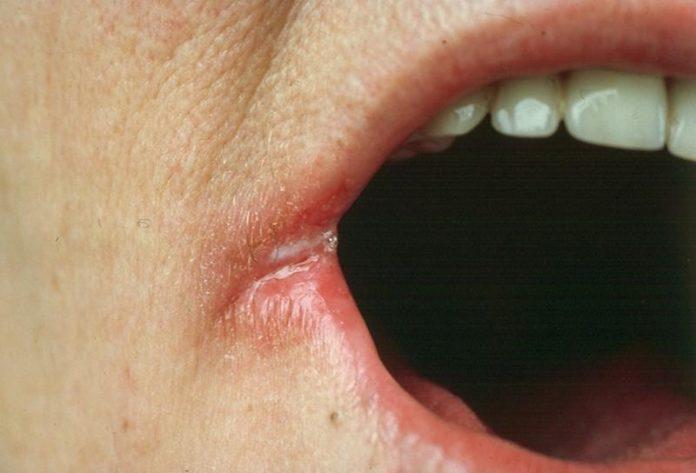 ОСТОРОЖНО! Сталкивались ли Вы хотя бы с одним из этих симптомов? Не игнорируйте их, потому что они могут быть плохими признаками!