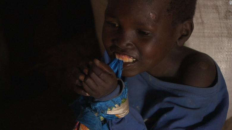 """Вот уже полвека загадочная болезнь превращает африканских детей в """"овощей"""""""