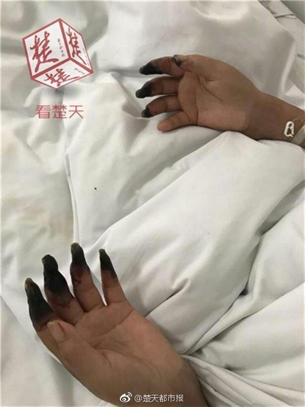 Генеральная уборка чуть не лишила китаянку рук ynews, гангрена, здоровые, китай, новости, уборка