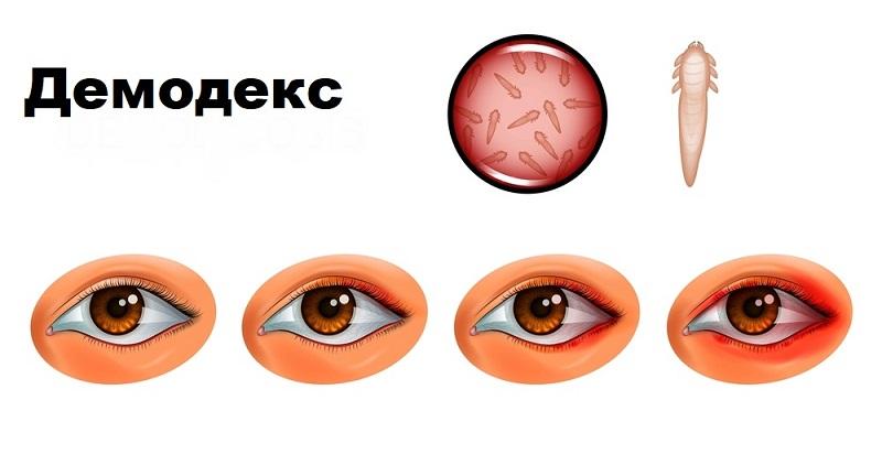 как лечить гнойный ячмень на глазу