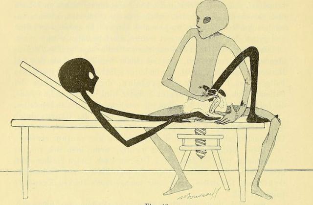 Гинекологическая гимнастика с гуманоидными пришельцами из книги 1895 года