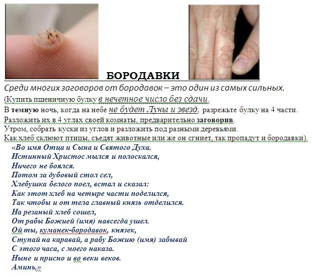 Бородавки лечение солью - Afishaclub.ru