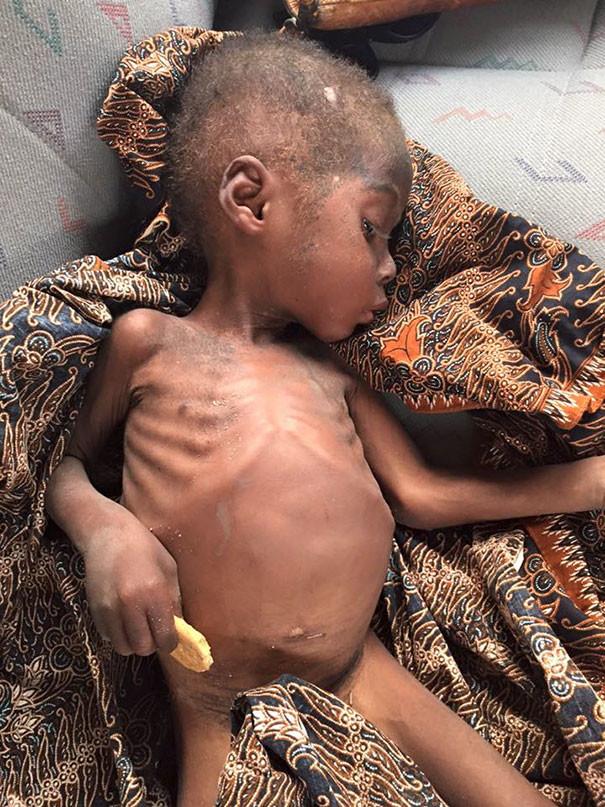 Мальчика оставили умирать на улице его родители, после обвинения в 'колдовстве' дети, доброта спасет мир