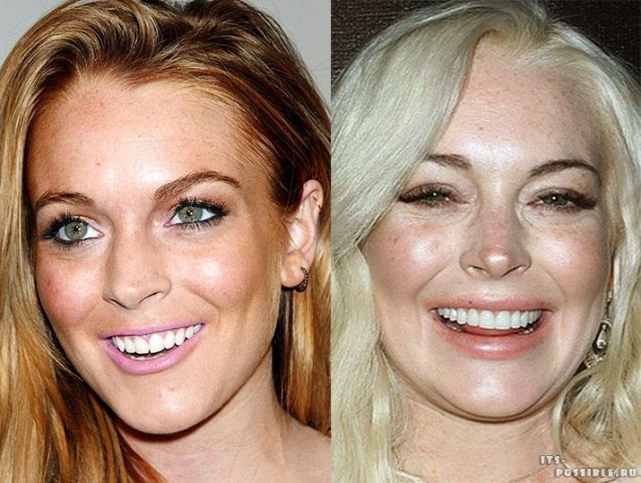 территория красивые зубы фото до и после некоторые