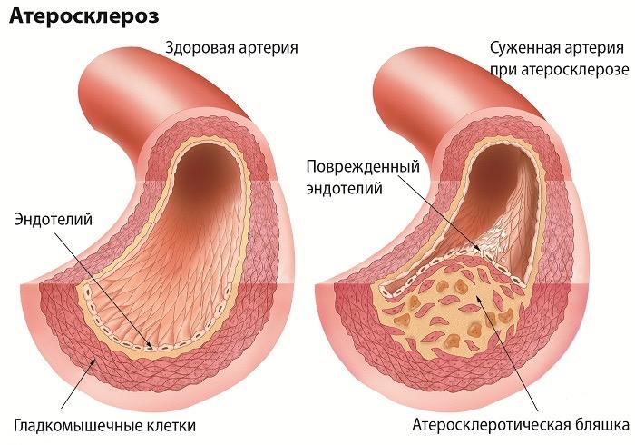 Что такое атеросклероз и как его избежать