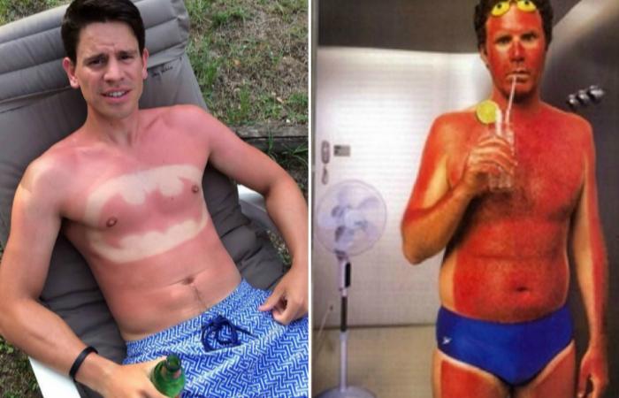 Злое солнце: 13 фотографий людей, которые стали жертвами загара