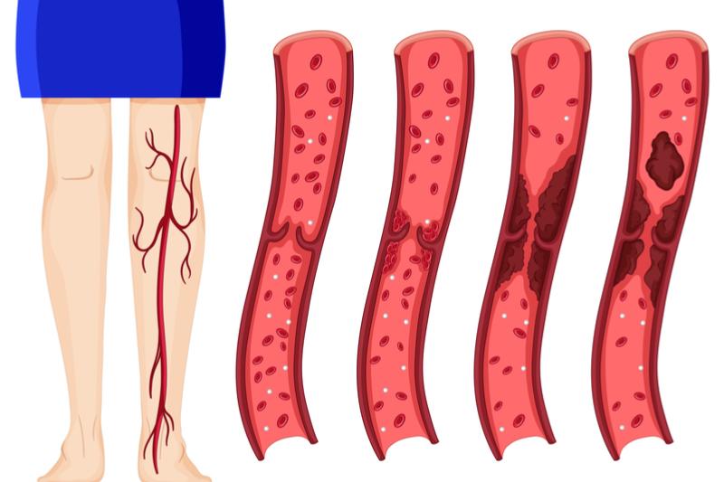 9 опасных симптомов тромбоза…