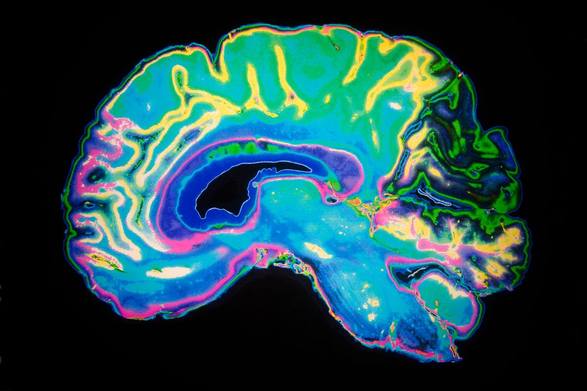 50 фактов о мозге, разъясняющих, как он устроен и работает интересные факты,мозг,наука,человек