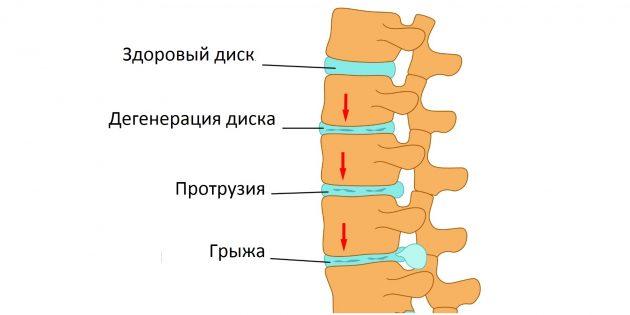 Что такое протрузия межпозвонкового диска и как её лечат здоровье,позвоночник,протрузия межпозвонкового диска