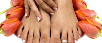 Как избавиться от мозолей на ногах и руках
