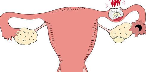 Первая помощь при внематочной беременности